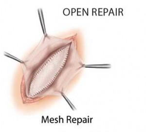 Open Mesh Hernia Repair