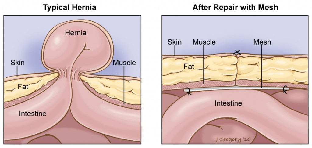 Treatment | Premier Hernia Center