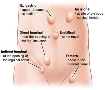 Types of Hernias